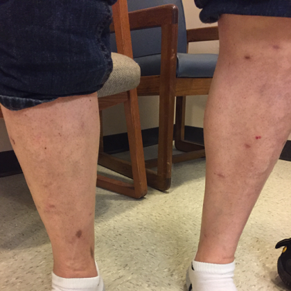 Varicose Veins Before & After Patient #355