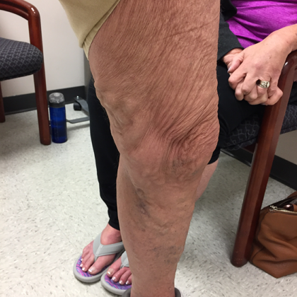 Varicose Veins Before & After Patient #345