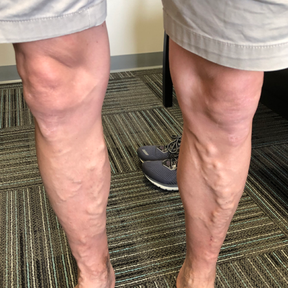Varicose Veins Before & After Patient #352