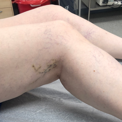 Spider Veins Before & After Patient #332