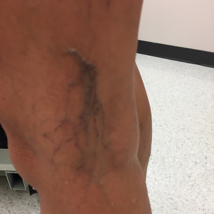 Varicose Veins Before & After Patient #317