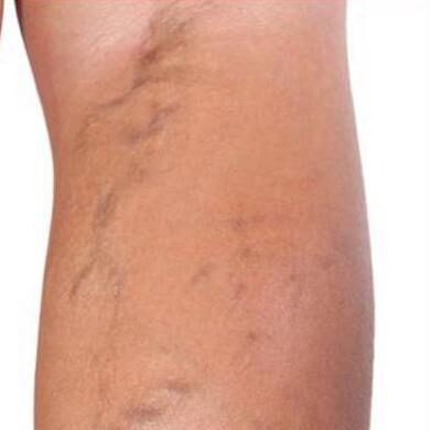 Spider Veins Before & After Patient #276