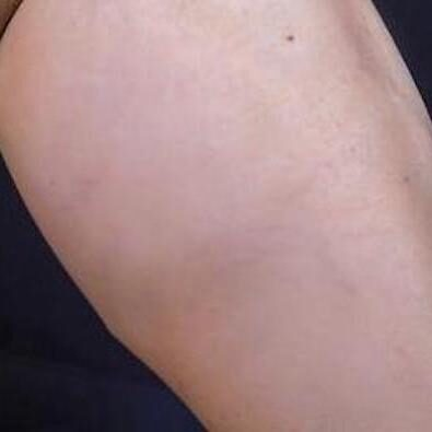 Spider Veins Before & After Patient #279